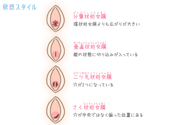 開口部の形によって分類される処女膜のイラスト2