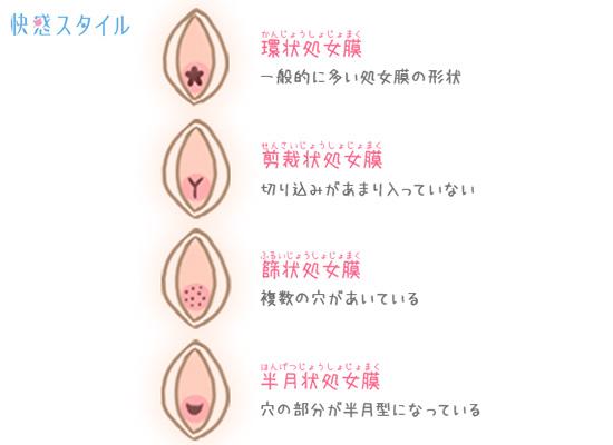開口部の形によって分類される処女膜のイラスト1